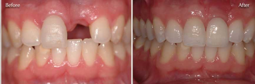 dental-implants-before-and-after